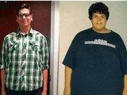 1年减掉248斤,皮肤松弛毫无美感,这样的减肥结果你想要吗?