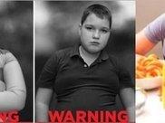 惊喜!接受胃旁路减肥术的青少年,糖尿病和高血压缓解率高于成人