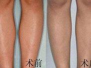 做超声溶脂瘦小腿副作用