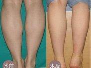 做共振吸脂瘦小腿价格要多少