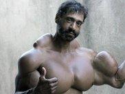 男子不满身材连续5年注射燃油健身,肌肉竟如此变态