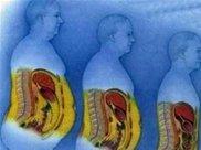 肚子大的肥胖者,肚子里都是什么?