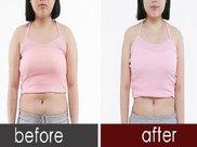 水动力吸脂瘦腰麻醉方式是什么?