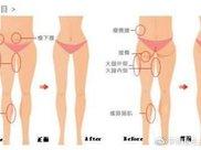 大腿吸脂的方法有哪些?