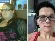 为了减肥300斤女子做手术一年瘦152斤