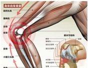 胖人减脂小心膝盖