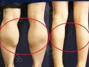腿部肌肉可以通过不吃饭而达到瘦腿效果吗?因为运动真的减不掉肌肉?