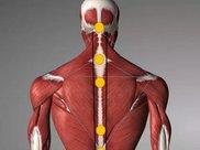 答疑解惑 | 偏瘫患者腰背肌肉疼痛是怎么回事?