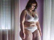 西班牙250斤胖女子通过手术减肥100斤,减肥后变成了大美女