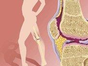 膝关节炎危害大,如何预防膝关节炎?