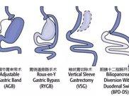 哪些人适合做切胃减肥手术?医生提醒只有符合这个条件才能做