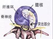 理疗瑜伽:8个瑜伽动作调理腰椎间盘突出!