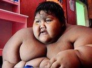 最胖男孩成功减肥之后, 留一身松驰的皮肤, 该如何处理?
