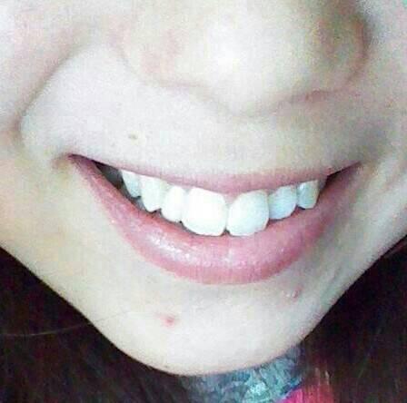 我以前门牙旁边的牙齿是畸形牙做了颗小烤瓷牙