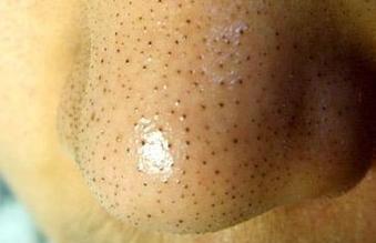 怎么去鼻子上的黑头(黑点)?这些黑点可以挤出小黄粒体东西,也不知道是什么~怎么预防黑头?