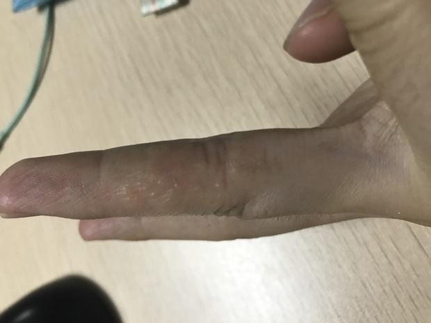 手指上长小水泡,脚趾上起湿疹,很痒。