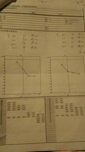 我的右耳平均听力是35dB,左耳平均听力是38d